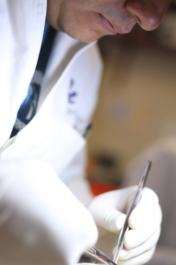 155 Cirrosis Hepatica